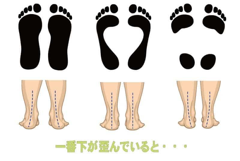 アーチと足のバランス